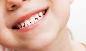 Cum se îngrijesc corect dinții de lapte ai copiilor. Ce este important să NU facem
