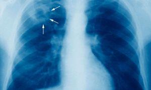 Studiu: Tuberculoza poate fi transmisă printr-o simplă respirație